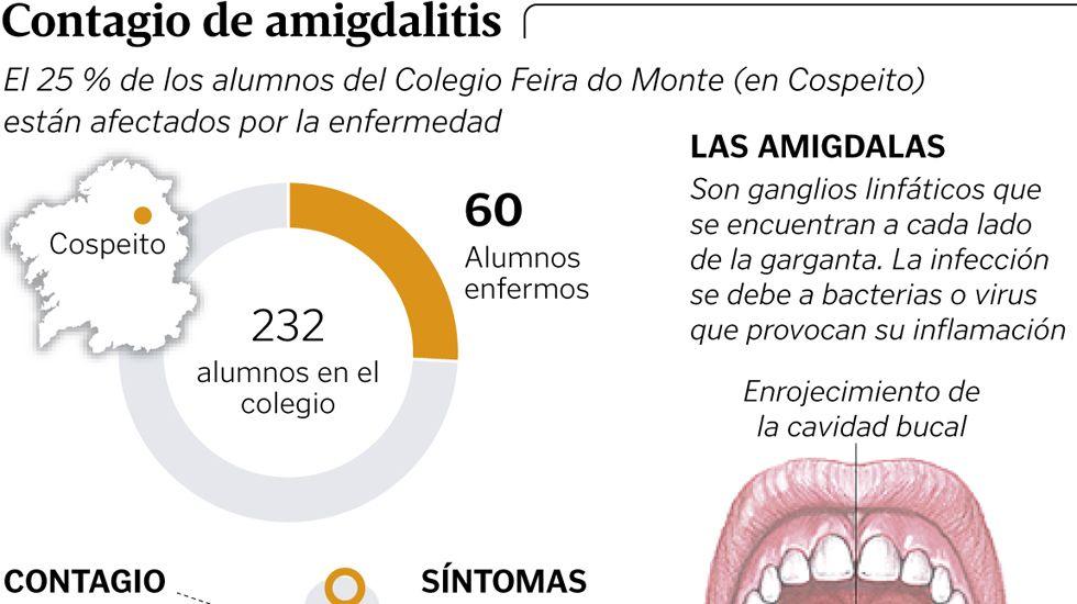 sintomas de amigdalitis viral y bacteriana