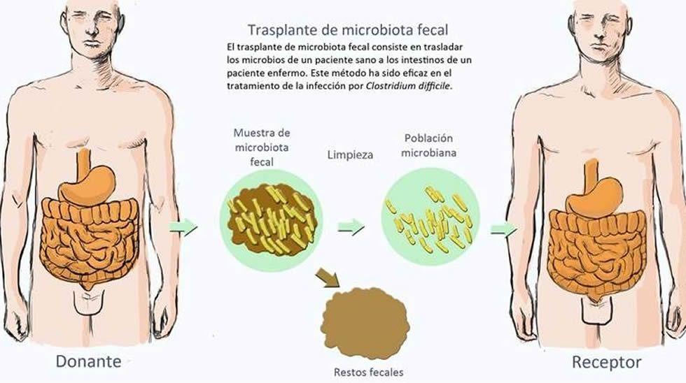 infección fecal