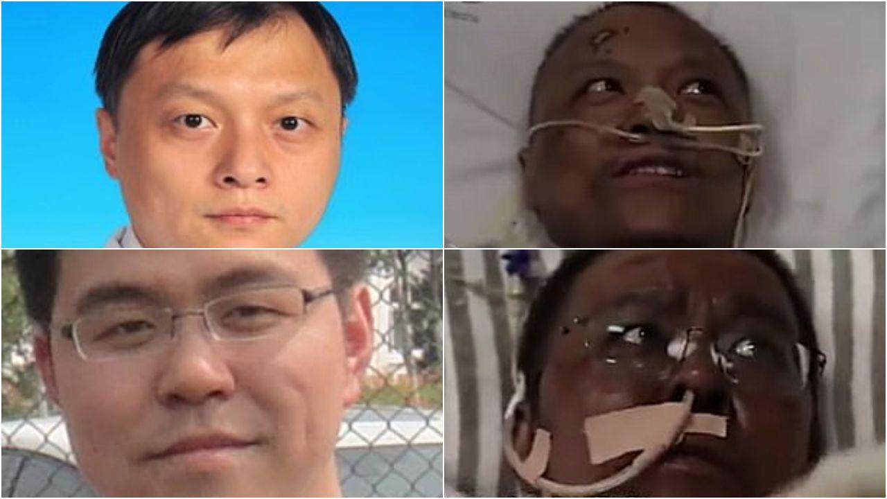 En la parte superior el doctor Yi Fan, del Hospital Central de Wuhan. A la izquierda, su imagen antes de tener coronavirus. A la derecha, tras superar la infección y con la piel oscurecida. Abajo, el mismo proceso, padecido por su compañero en el mismo centro sanitario, Hu Weifeng