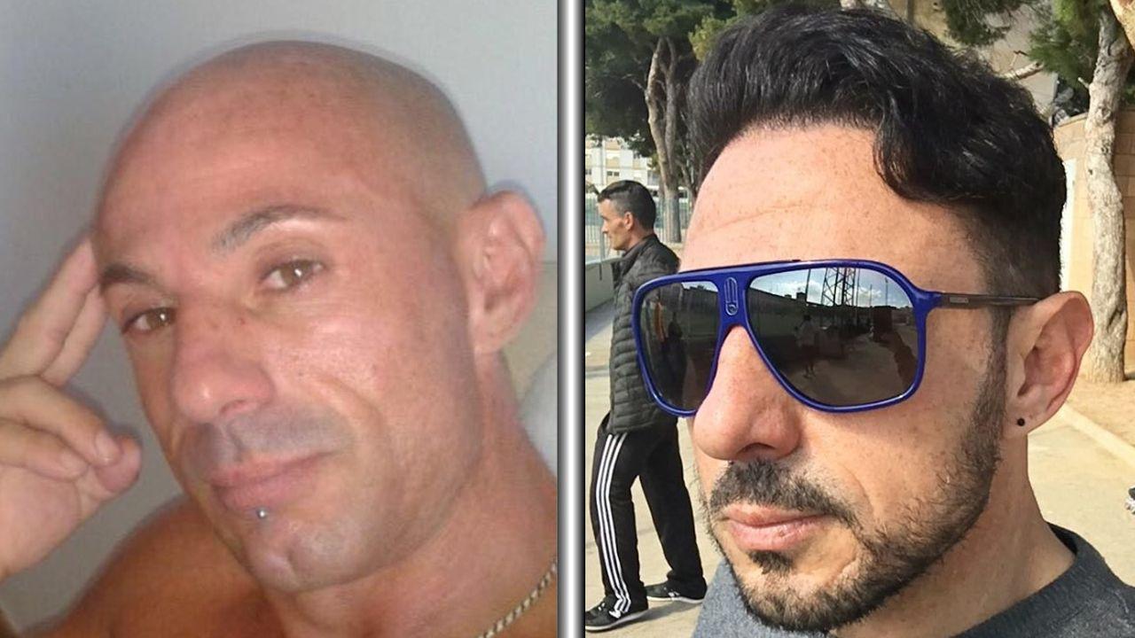 Antes y después de un trasplante capilar