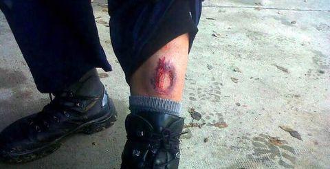 SUP.Agente herido en los entrenamientos