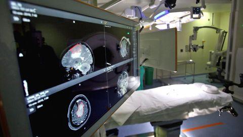 Imagen del quirófano más moderno del Cunqueiro, el de neurocirugía que dispone de tac intraoperatorio y neuronavegador.