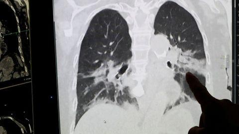 Los pulmones son una de las partes más afectadas por el covid-19