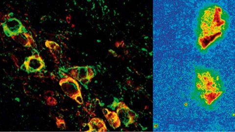 Neuronas afectadas, a la izquierda, y reducción progresiva de la proteína clave en la enfermedad tras el tratamiento (derecha)