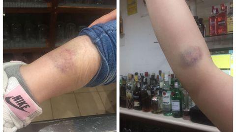 Algunos de los moratones sufridos por la camarera del local, de los que responsabiliza a los agentes de la policía