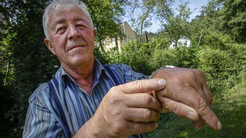 Una de las avispas atacó a Manuel Abeijón en una mano, y otras velutinas le picaron en la cabeza
