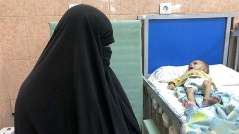 Una madre ve impotente cómo su pequeño se consume por no poder costear el tratamiento contra la desnutrición