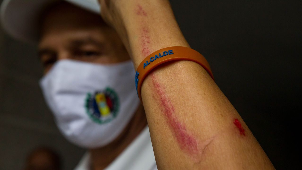 Uno de los opositores venezolanos, de Acción Democrática, muestra sus heridas tras las protestas de este lunes