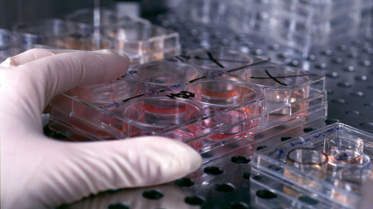 El mundo, entre la reapertura, las protestas y el desinfectante.En todo el mundo se están realizando investigaciones para encontrar una vacuna o un tratamiento para el SARS-CoV-2