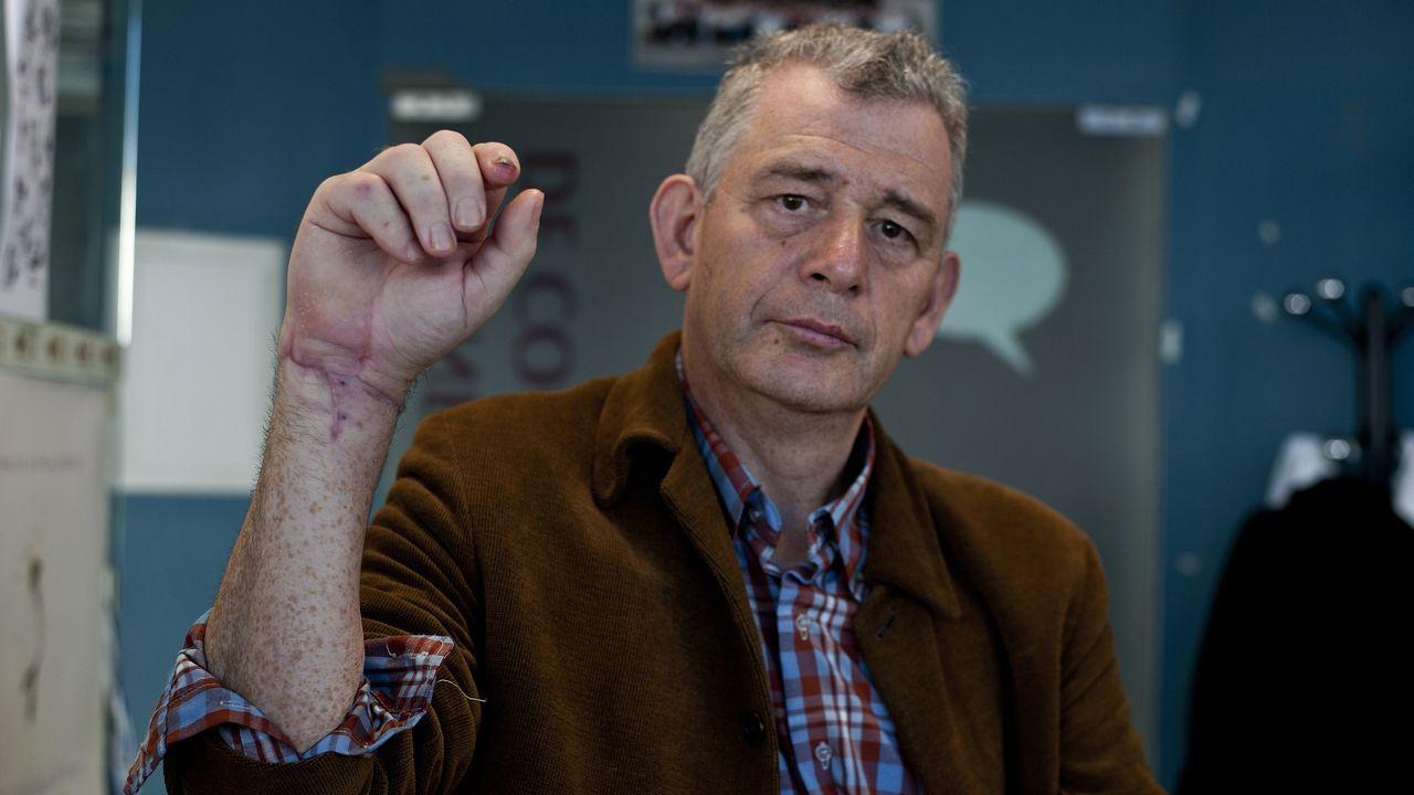 Abel Vázquez Pardo, de 60 años, sigue rehabilitación para recuperar las funciones de la mano que le reimplantaron