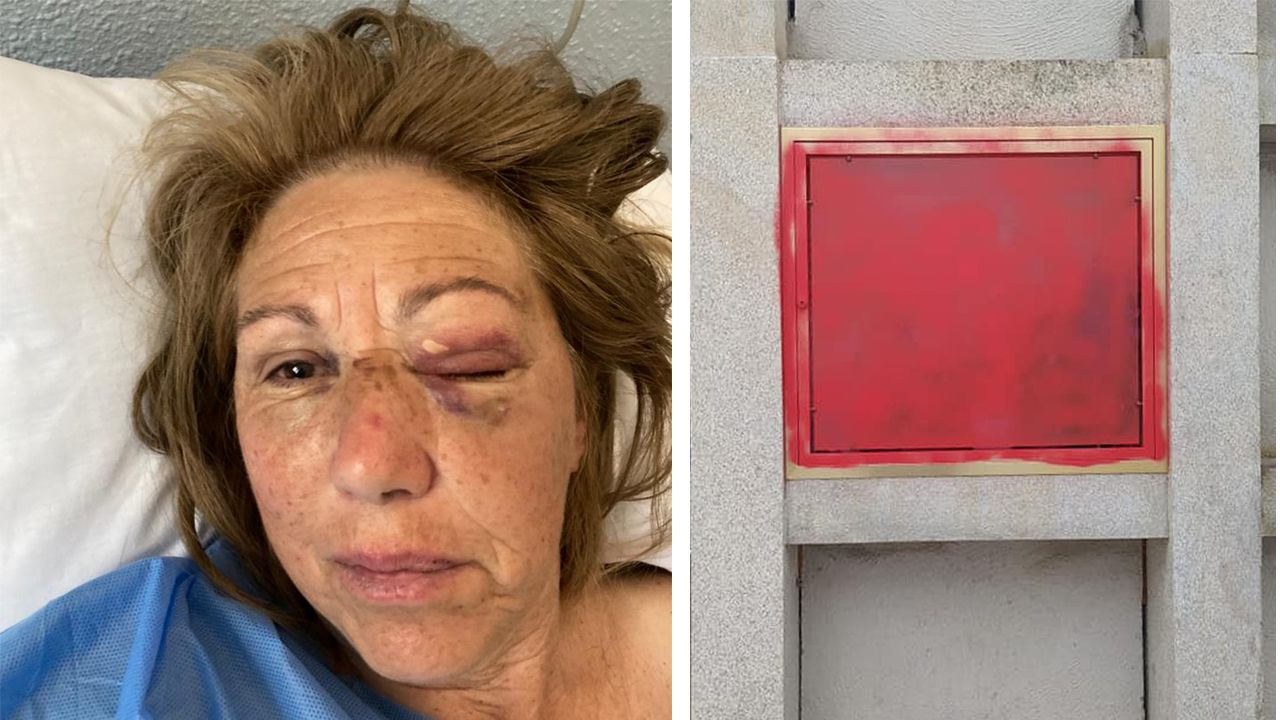 Imagen de la mujer agredida y de la tumba que apareció abierta en el cementerio