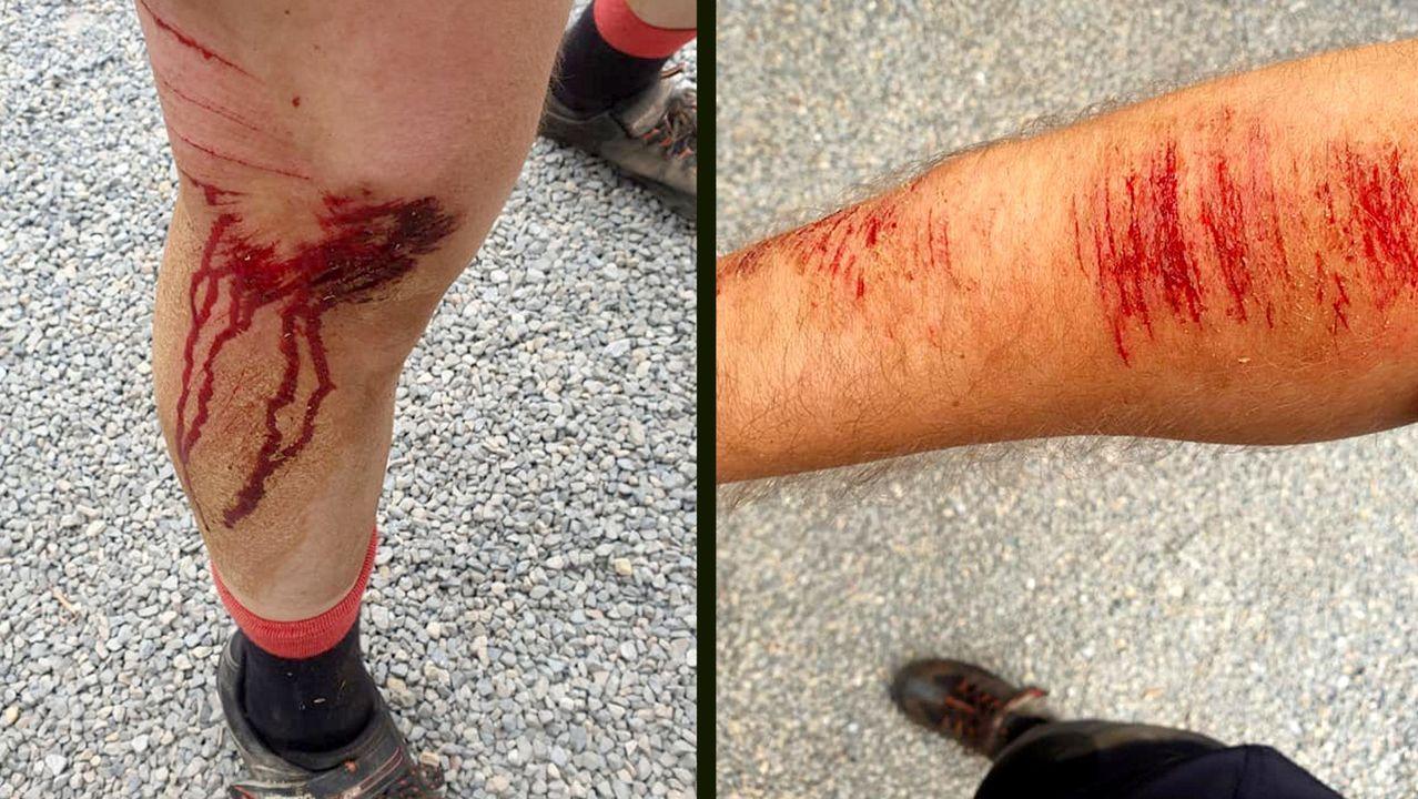 Feridas do ciclista arrollado en Goián (Sarria) por un coche que se deu á fuga