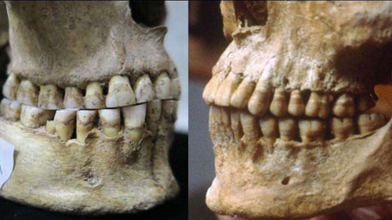 El cráneo de una antigua cazadora-recolectora de Rumania (izquierda) carece de una sobremordida observada en el cráneo de un griego de hace 2.500 años