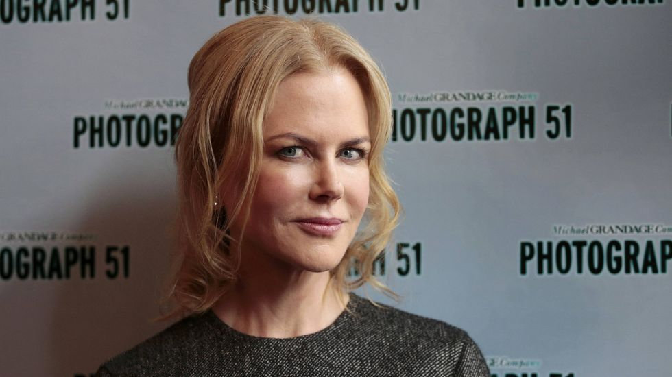 El antes y el después de los adictos al bisturí.Nicole Kidman en una imagen de archivo.