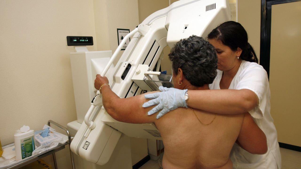 Pruebas del cáncer de mama