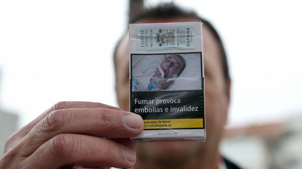 F.J.A., que no quiere indemnización, presento una denuncia en la que afirma que la imagen es de él tras ser operado en Santiago.