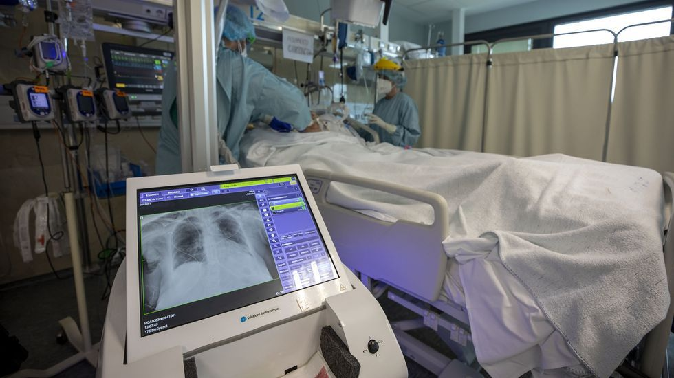 COVID-19: uci de adultos del hospital Clínico de Santiago.
