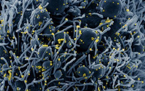 El mundo toma el pulso a la pandemia.Analítica de coronavirus realizada en el laboratorio de Virología del HUCA