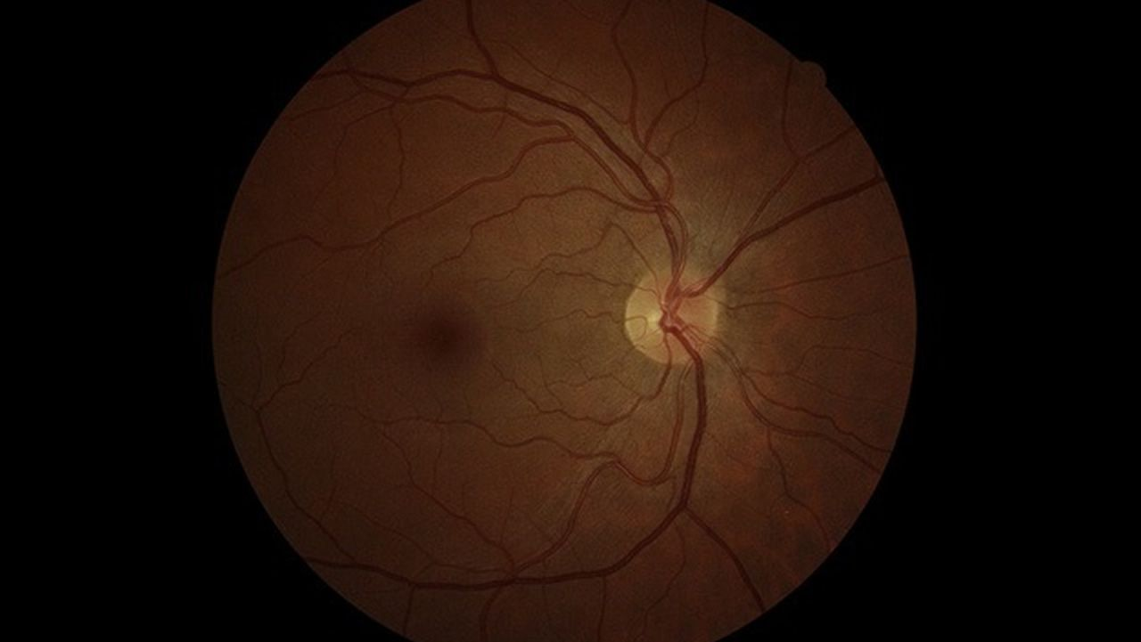 Imagen médica de un ojo