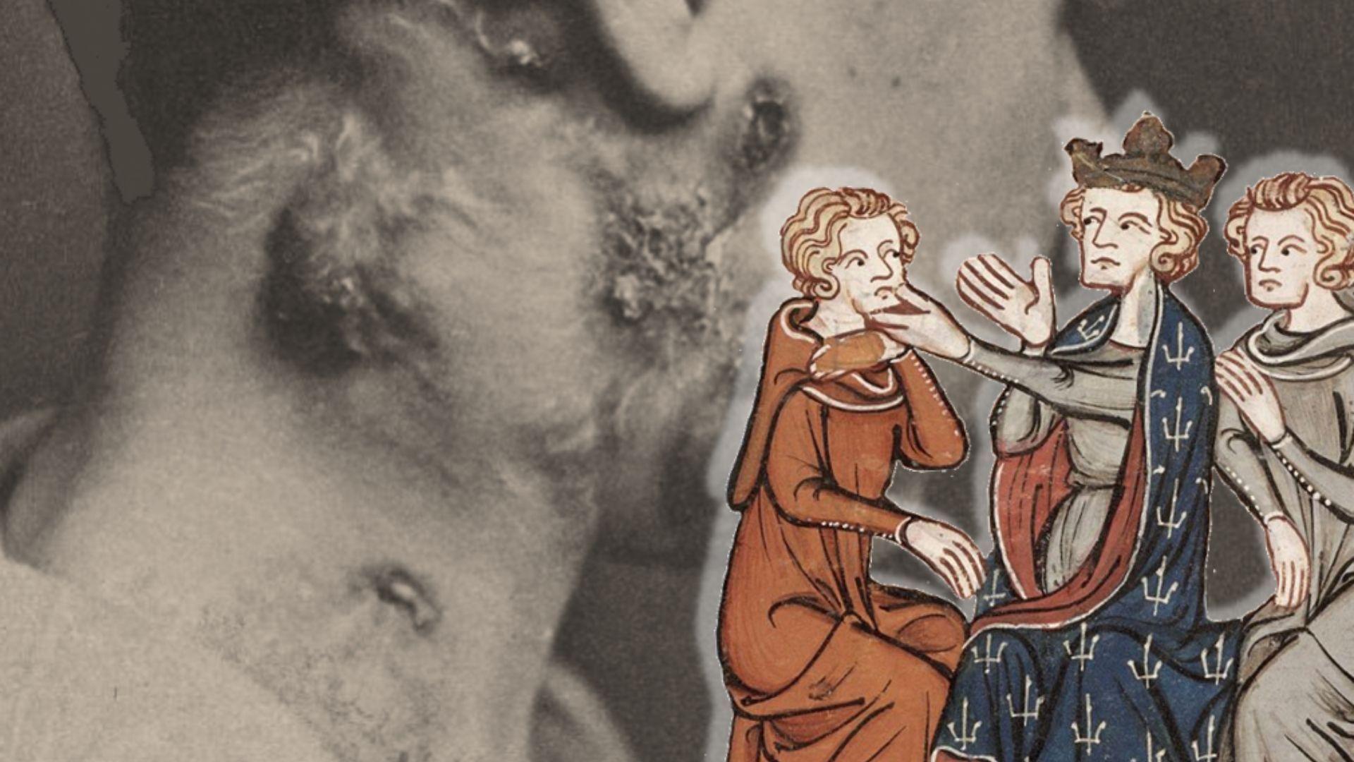 Tuberculosis medieval o escrófula. Años 1300-1500. Aunque no propiamente «epidémica» y presente en la humanidad desde la Prehistoria, la tuberculosis tiene una manifestación singular durante toda la Edad Media, con especial incidencia y brotes concretos en los siglos XIV y XV en Francia e Inglaterra.