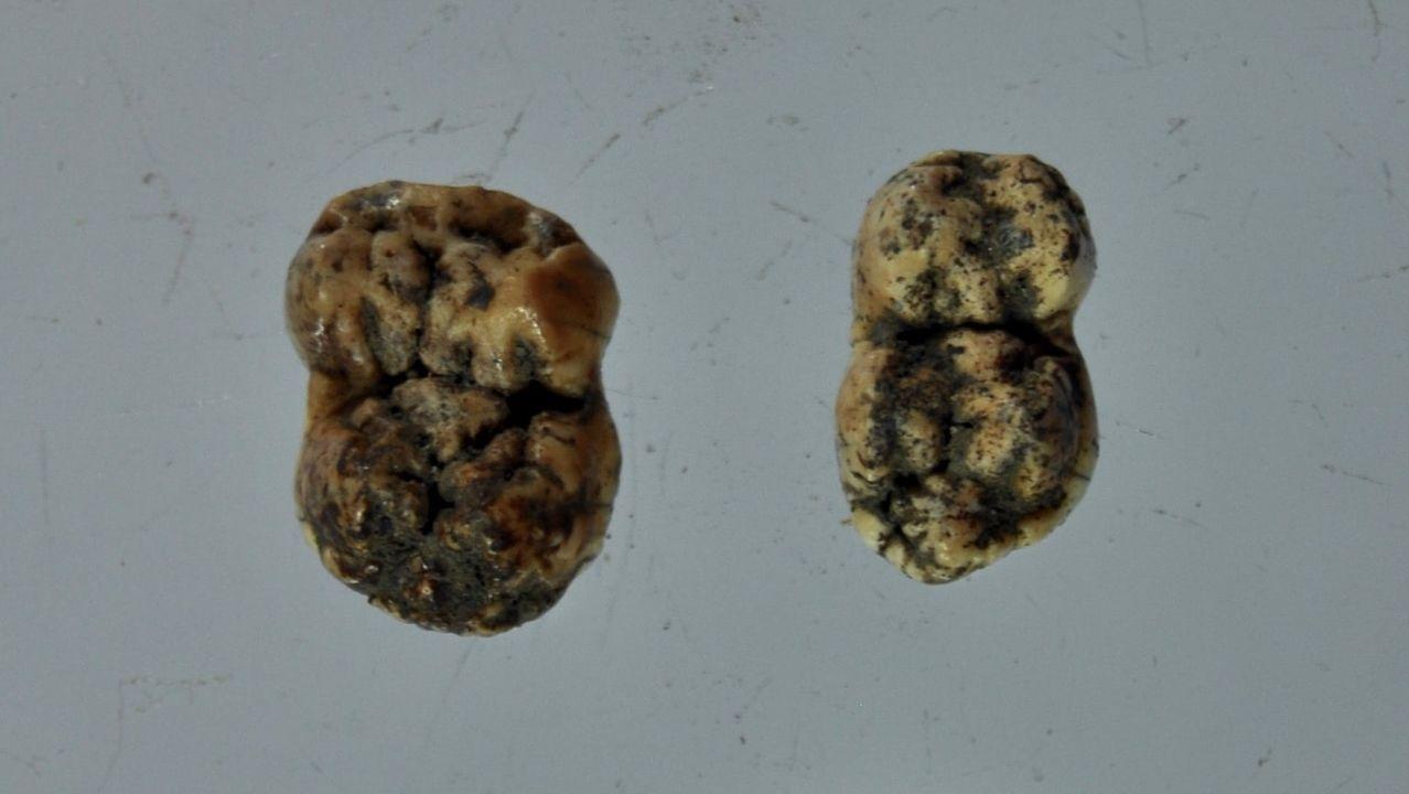 Setas de O Courel que no estaban catalogadas en la península Ibérica y en Galicia.Dientes de cerdo extraídos de una tumba del cementerio medieval de Cereixa, que ahora se está intentando datar mediante un análisis de carbono 14