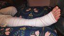 El pie de David Puertas, tal y como se lo han vendado en Cabueñes