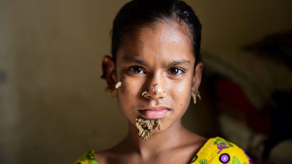 El éxodo de losrohinyás deBirmania y su confinamiento en campos de refugiados en Bangladés