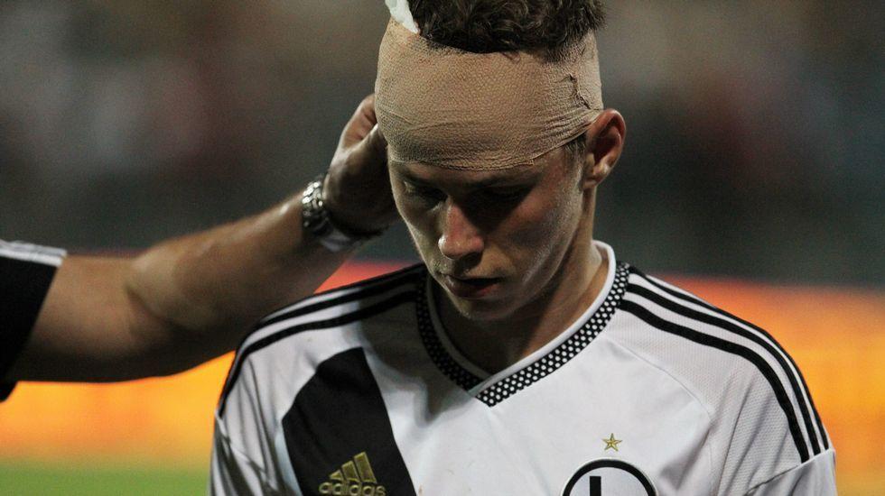 Momento en el que la piedra alcanza al futbolista.
