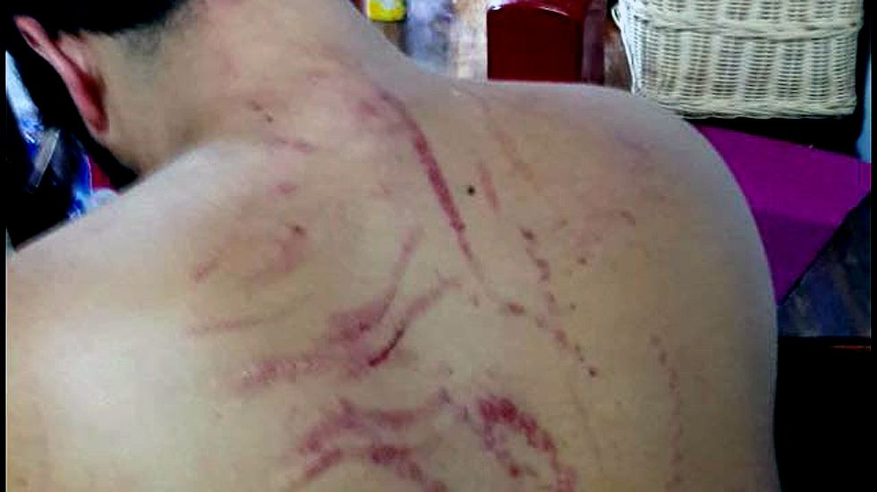 Estado en el que quedó la espalda del joven agredido en una paliza en La Corredoria.Estado en el que quedó la espalda del joven agredido en una paliza en La Corredoria