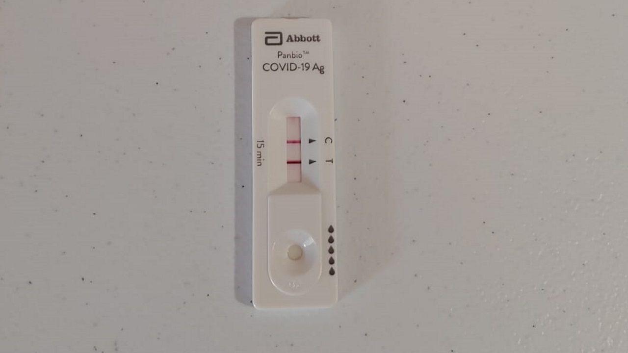 Imagen de la placa para el test rápido de antígenos que ha comenzado a probarse en el Chuac