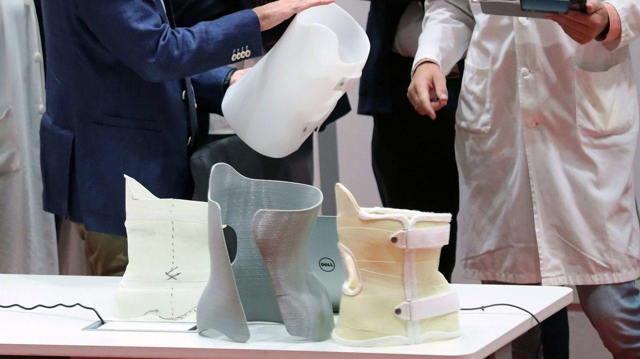 El prototipo de corsé en impresión 3D con tecnología de sensores para pacientes de escoliosis idiopática del adolescente