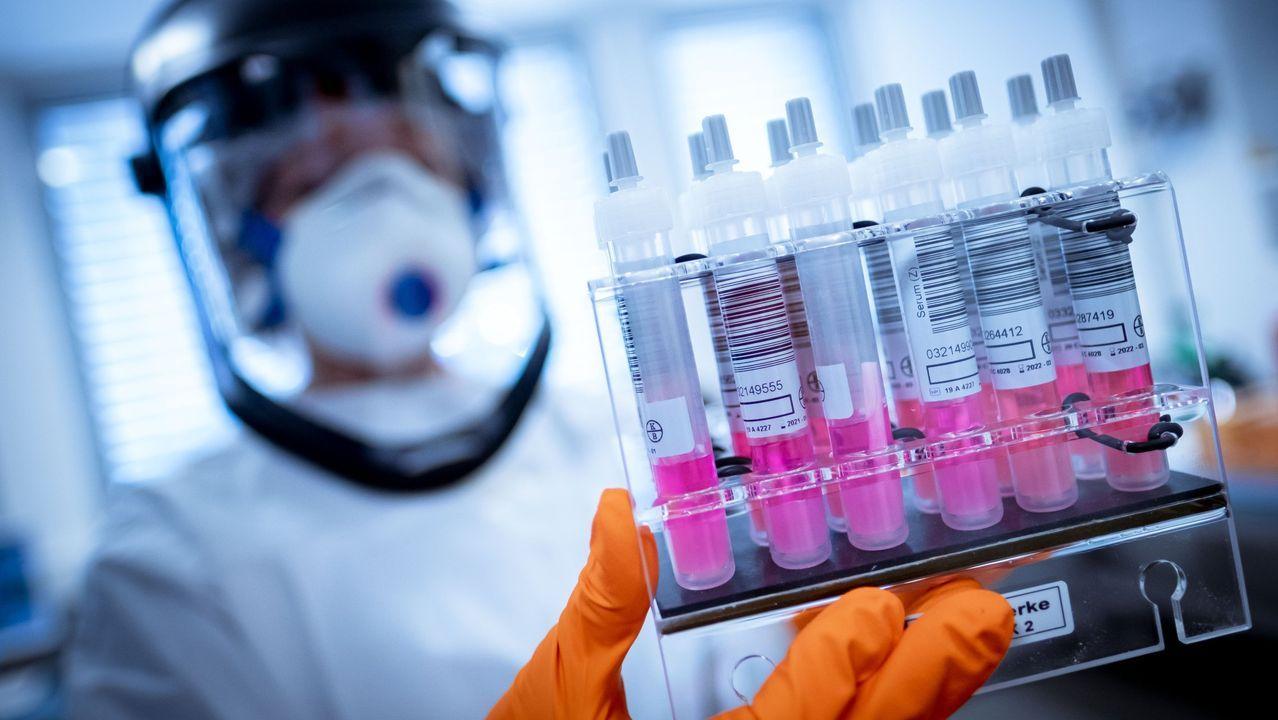 Imagen de ensayos de una vacuna contra el covid