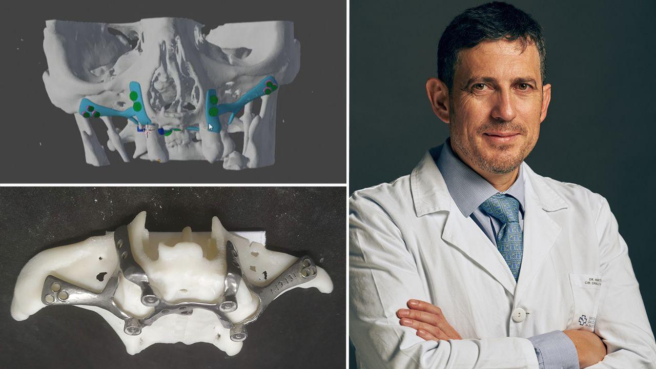 Arriba a la izquierda la prótesis maxilar en su simulación virtual y debajo, impresa en 3D en titanio médico. A la derecha, el cirujano Pedro Martínez Seijas