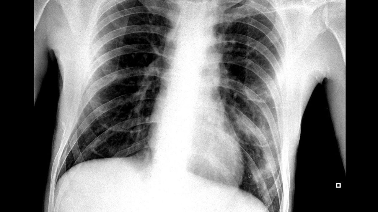 Así fue la primera radiografía del médico del CHUO tras dar positivo por coronavirus