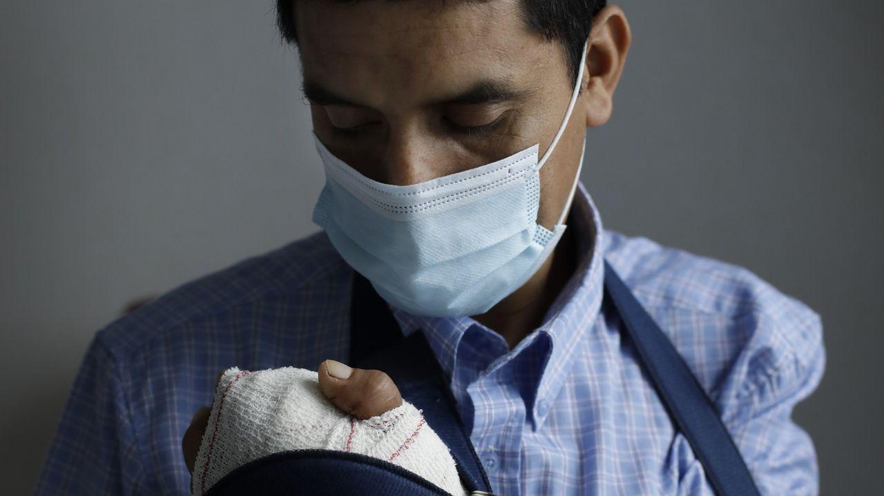 José Delgado sufrió una amputación en un accidente laboral en Carral