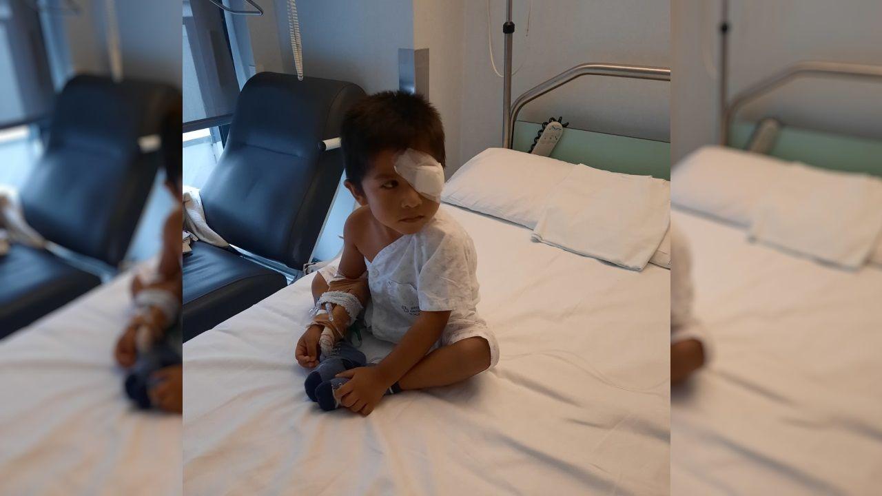 El niño de tres años que sufrió heridas graves en un ojo por causa del gel hidroalcohólico cuando estaba en el comedor escolar del colegio de Vilatuxe