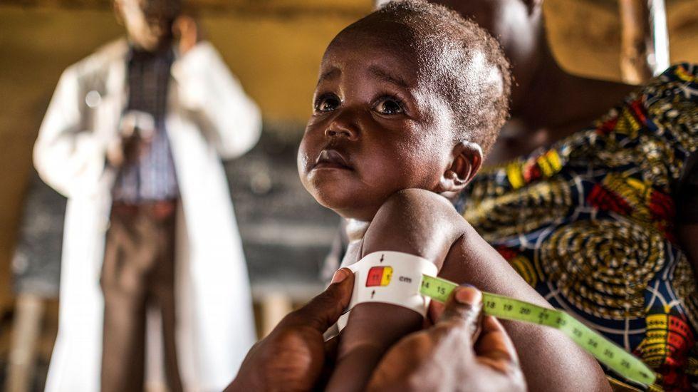 Personal sanitario toma medidas a un niño en el marco del programa contra la desnutrición del Programa Mundial de Alimentos, en la República Democrática del Congo