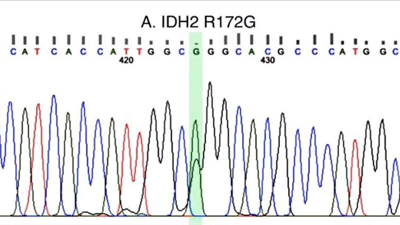 Así es Nuestra Pequeña República.Imagen de la mutación hallada en el gen IDH2
