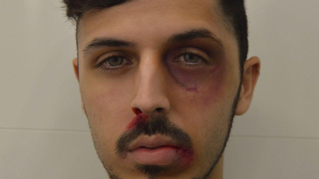 Alberto Ramos tras una de las múltiples agresiones que sufrió en Estocolmo