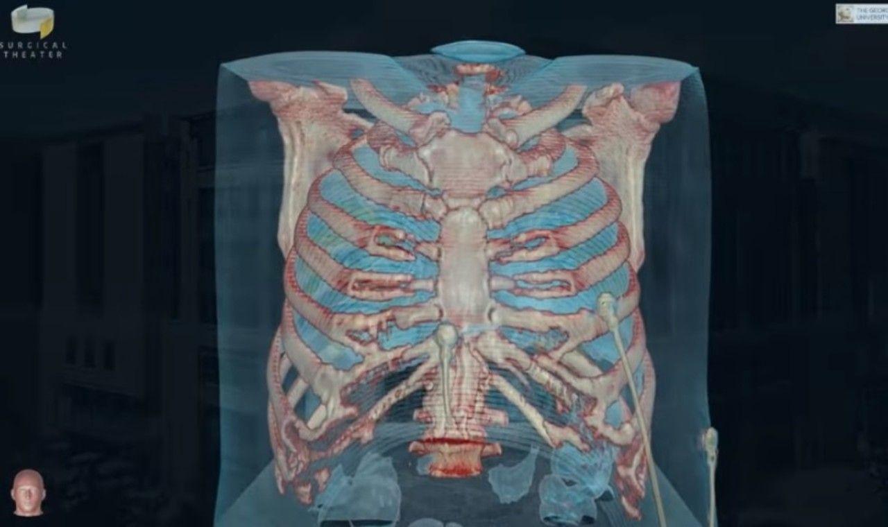 Vista en VR de un paciente infectado con coronavirus