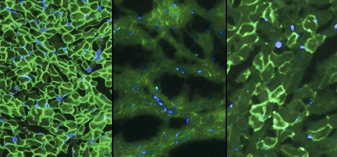 En la imagen superior se muestra a la izquierda la proteína distrofina (en verde claro), que protege contra la debilidad muscular, en un músculo sano; en la del medio se observa el mismo tejido sin la proteína, lo que provoca la enfermedad, y en la de la derecha la proteína regenerada.