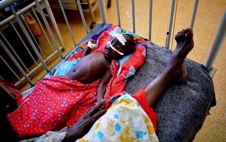 Imagen de un niño malnutrido tomada el pasado 24 de abril en un hospital Mogadiscio.