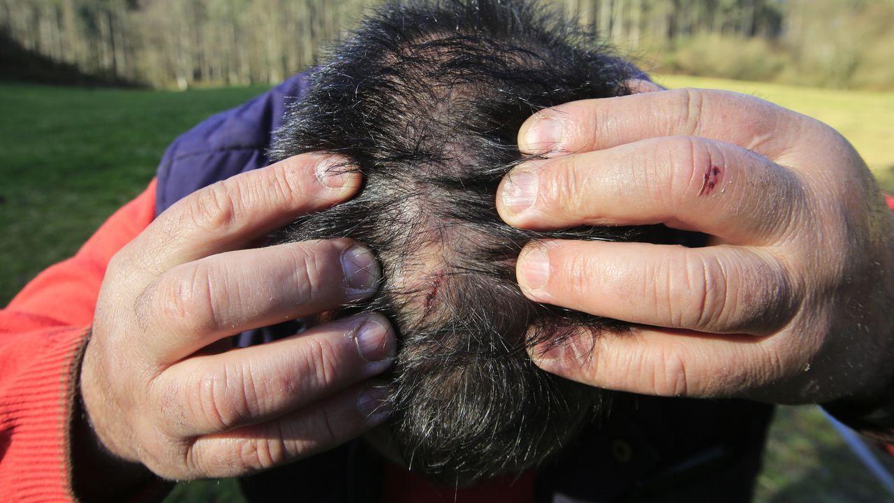 Isidro muestra las lesiones en su cabeza provocadas por la pelea