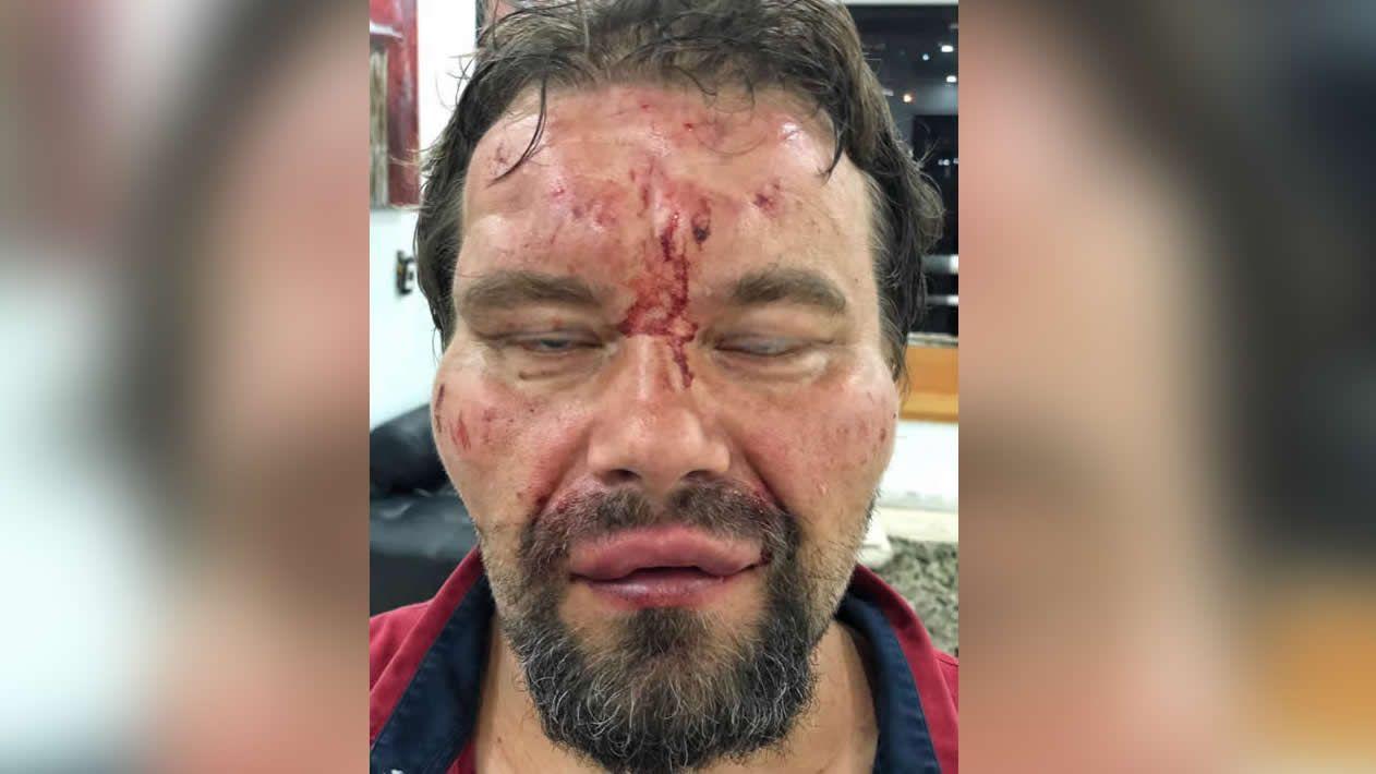 Imagen difundida por el Sindicato Nacional de Trabajadores de la Prensa de Venezuela del periodista polaco tras ser liberado