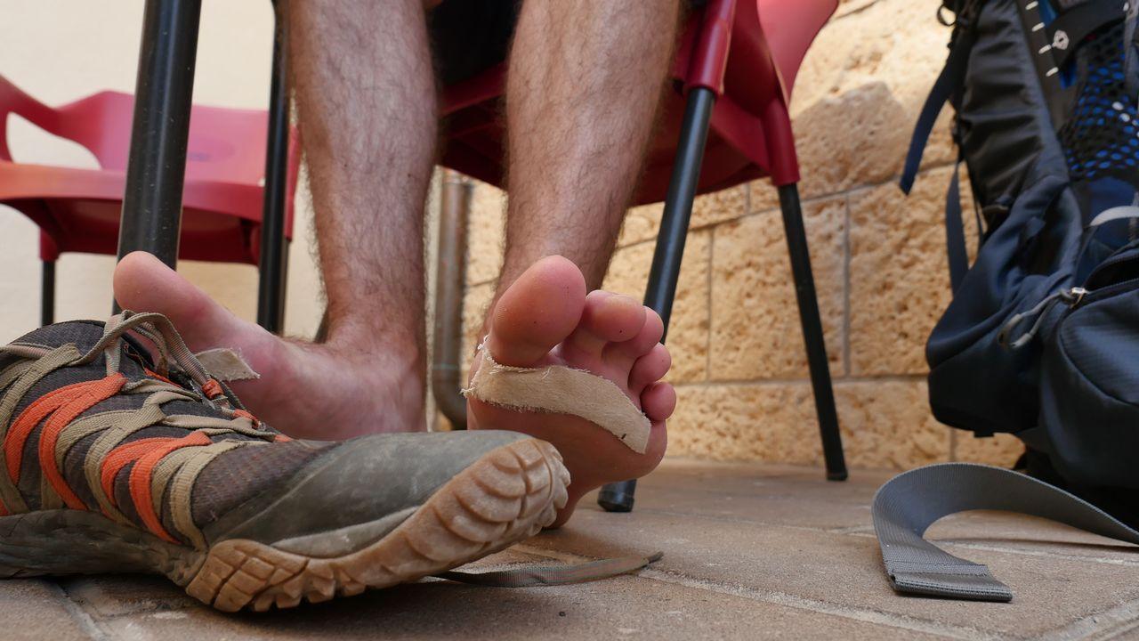 Los pies dañados de uno de los peregrinos