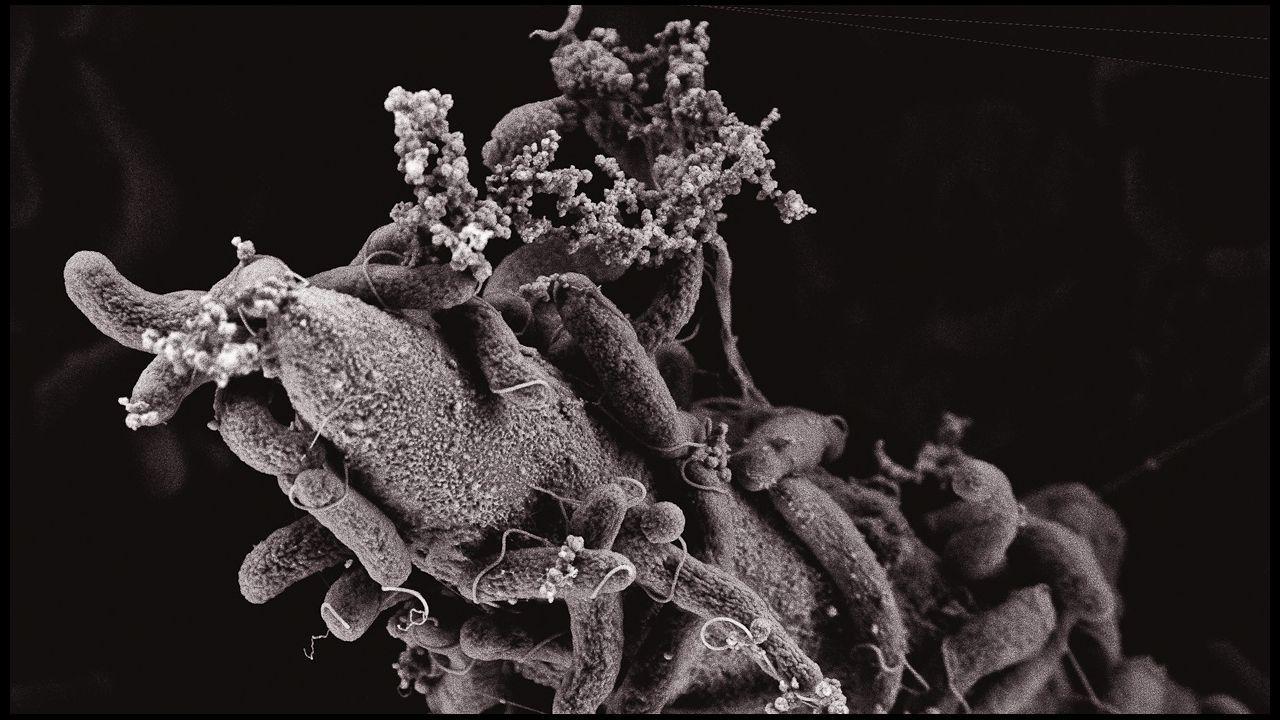 Imagen del cólera