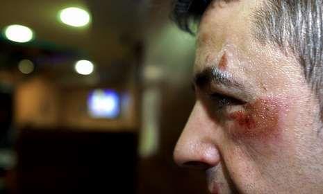Prostitutas protestan en Madrid contra la ley de seguridad ciudadana.Un hostelero carballés fue agredido por dos encapuchados en la madrugada del viernes.