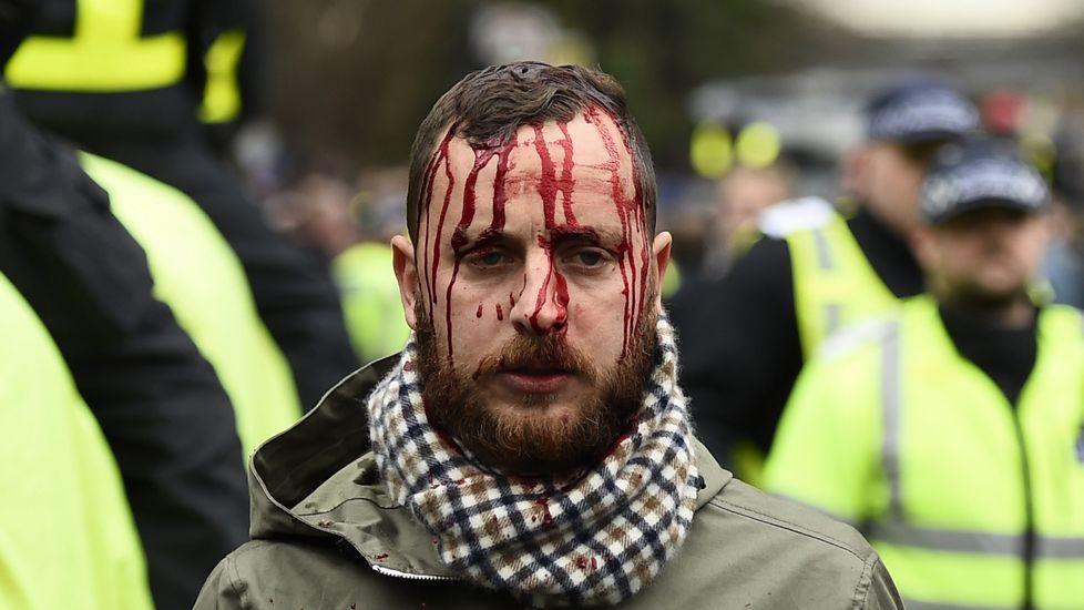El Tottenham-Arsenal, en fotos