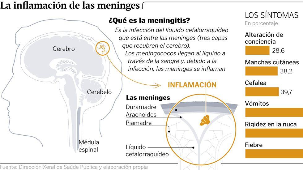La inflamación de las meninges