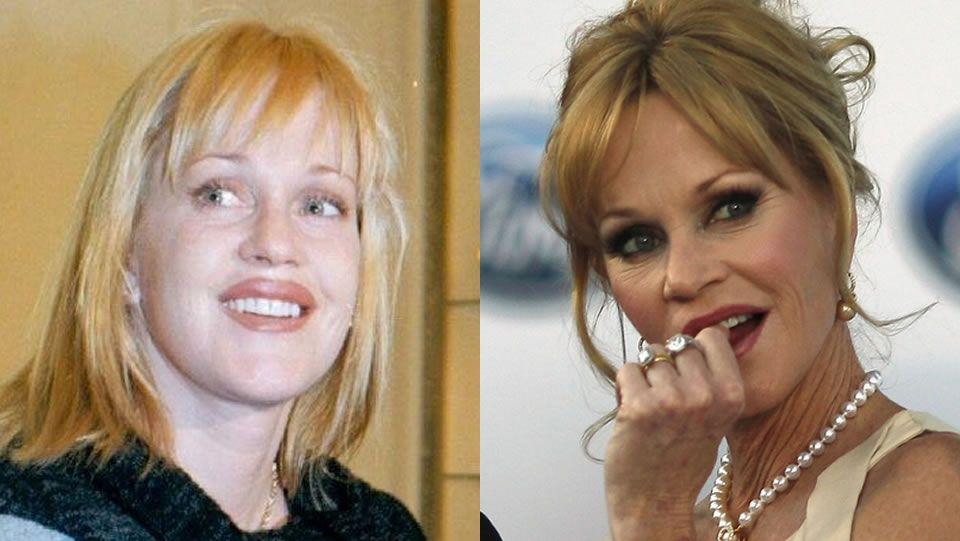 Melanie Griffith.El antes y después de Melanie Griffith